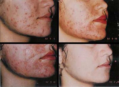chemical-peel-acne-treatments_1_5164