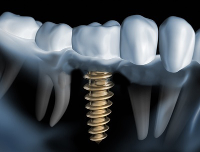 implantacia_zyb